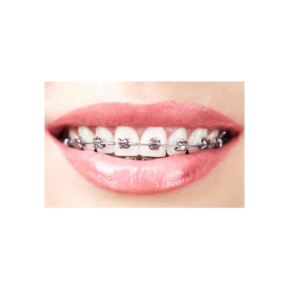 KING-NL-Orthodontie